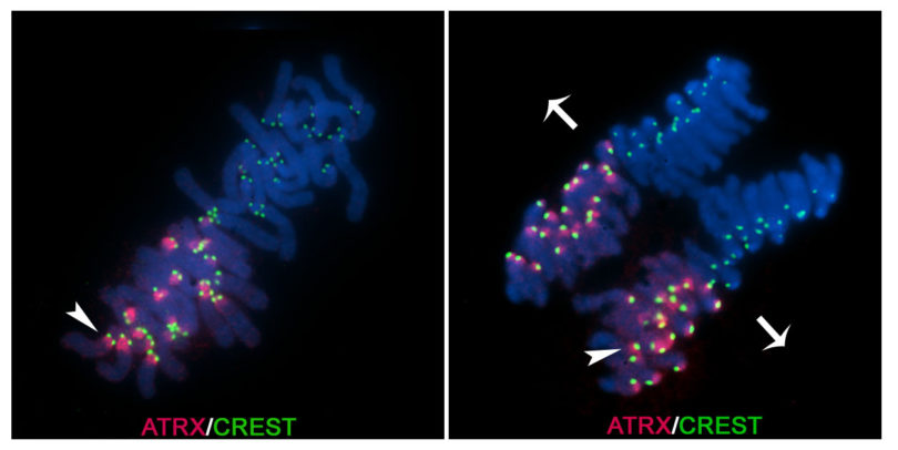 Fluorescence microscopy of maternal paternal chromosomes RBC-h.photo