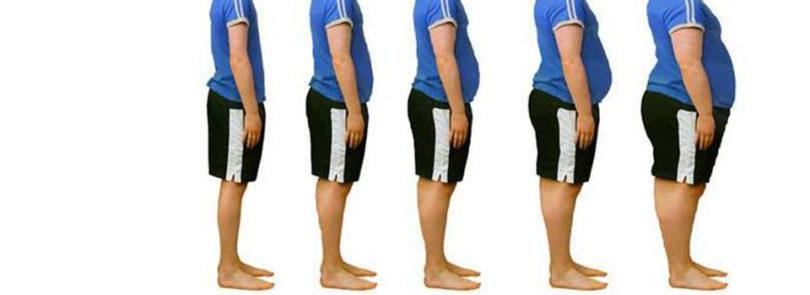 Obesity linked to poor bone health