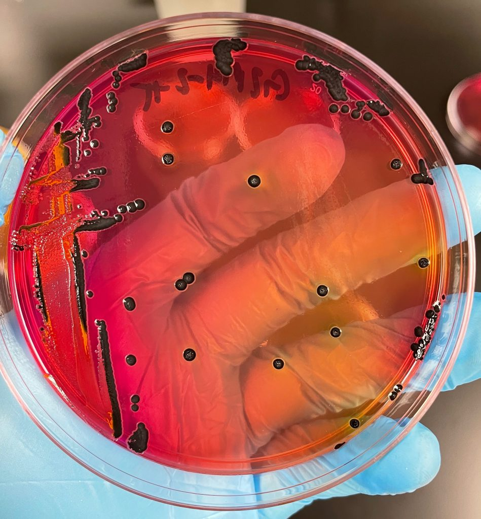 Researcher holds dish that has salmonella growing on it.